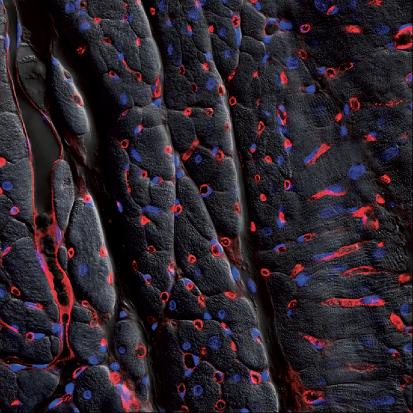 Microscopy Australia